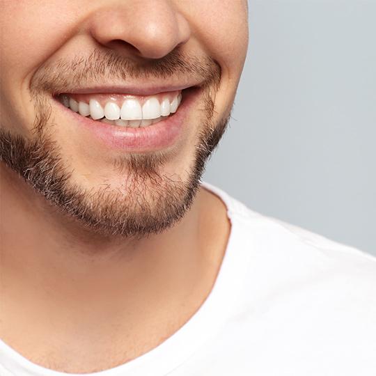 Close-up clean white teeth smile